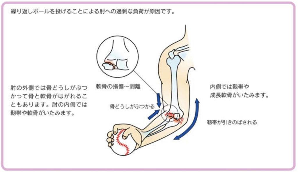野球肘の発生原因