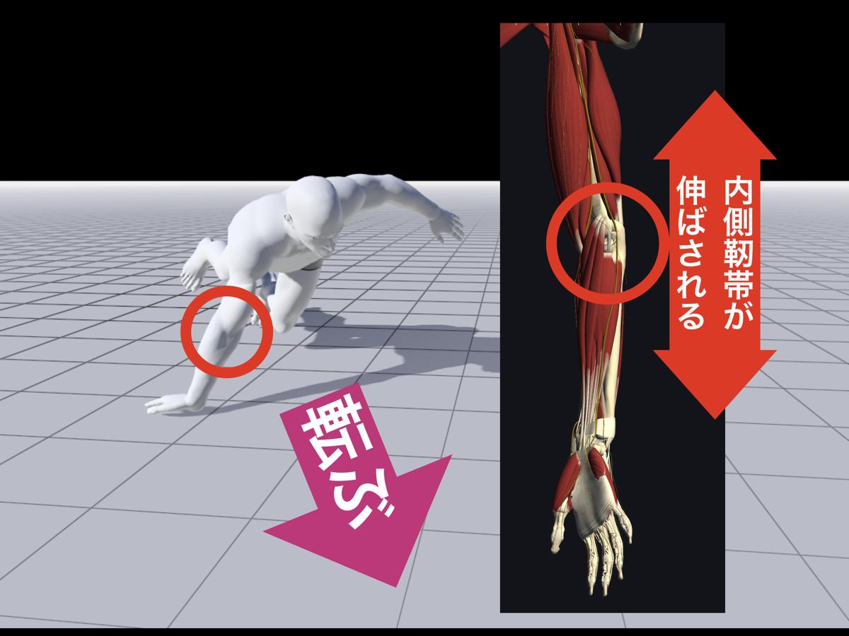 内側 側 副 靭帯 損傷 痛み
