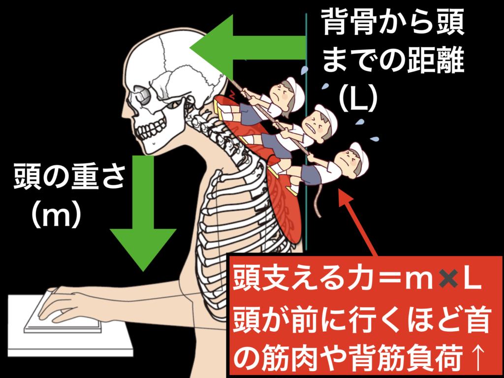ストレートネックになると、首や背筋に負荷がかかる理由