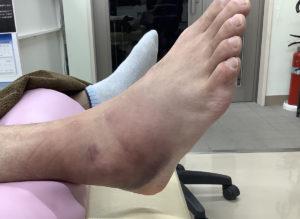内反捻挫受傷時の内出血状態