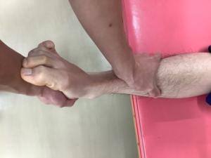 足関節前方引き出しテスト