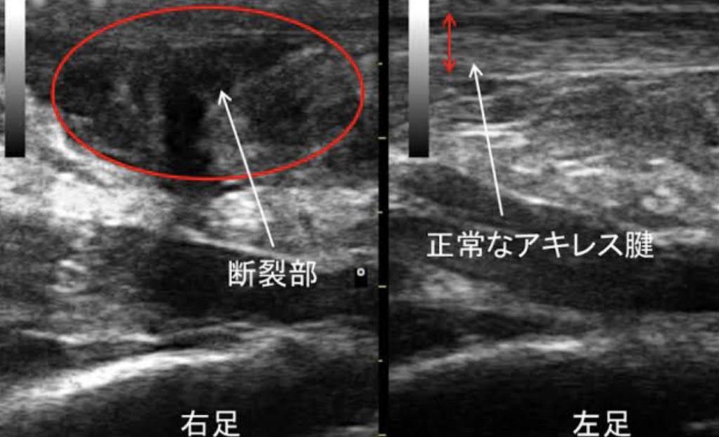 アキレス腱断裂の超音波検査像