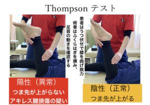 アキレス腱断裂の受傷現場でも確認しやすい検査:Thompsonテスト