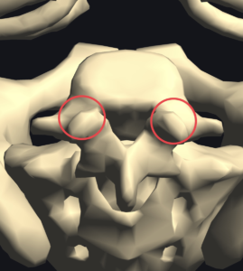 図2:腰椎椎弓